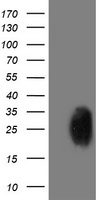 HEK293T cells were transfected with the pCMV6-ENTRY control (Left lane) or pCMV6-ENTRY PGAM2 (Right lane) cDNA for 48 hrs and lysed. Equivalent amounts of cell lysates (5 ug per lane) were separated by SDS-PAGE and immunoblotted with anti-PGAM2.