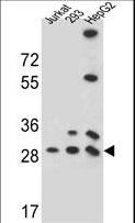PGAM4 Antibody western blot of 293,HepG2,Jurkat cell line lysates (35 ug/lane). The PGAM4 antibody detected the PGAM4 protein (arrow).