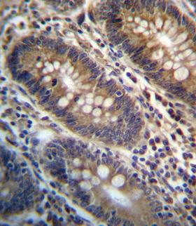 PGAP3 / PERLD1 Antibody - PGAP3 Antibody immunohistochemistry of formalin-fixed and paraffin-embedded human colon tissue followed by peroxidase-conjugated secondary antibody and DAB staining.