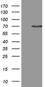 PGBD3 Antibody - HEK293T cells were transfected with the pCMV6-ENTRY control. (Left lane) or pCMV6-ENTRY PGBD3. (Right lane) cDNA for 48 hrs and lysed. Equivalent amounts of cell lysates. (5 ug per lane) were separated by SDS-PAGE and immunoblotted with anti-PGBD3. (1:2000)