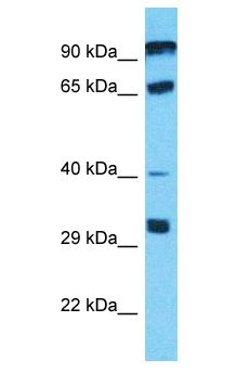 PGBD4 Antibody - PGBD4 antibody Western Blot of Jurkat. Antibody dilution: 1 ug/ml.  This image was taken for the unconjugated form of this product. Other forms have not been tested.