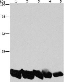 PGK1 / Phosphoglycerate Kinase Antibody - Western blot analysis of A549 and HeLa cell, mouse liver and human liver tissue, hepG2 cell, using PGK1 Polyclonal Antibody at dilution of 1:850.