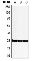 PGLS / 6PGL Antibody - Western blot analysis of 6PGL expression in HeLa (A); SP2/0 (B); PC12 (C) whole cell lysates.