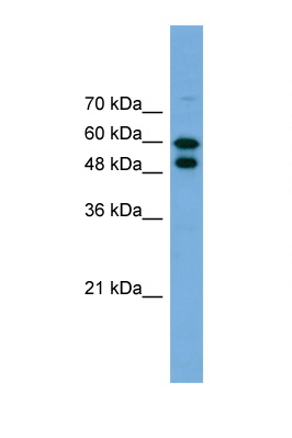 PGM1 antibody LS-C135382 Western blot of 293T Cell lysate. Antibody concentration 1 ug/ml.  This image was taken for the unconjugated form of this product. Other forms have not been tested.