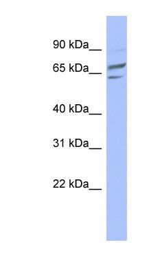 PGM1 antibody LS-C111906 Western blot of HeLa lysate.  This image was taken for the unconjugated form of this product. Other forms have not been tested.