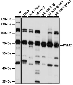 PGM2 Antibody - Western blot analysis of extracts of various cell lines, using PGM2 antibody at 1:1000 dilution. The secondary antibody used was an HRP Goat Anti-Rabbit IgG (H+L) at 1:10000 dilution. Lysates were loaded 25ug per lane and 3% nonfat dry milk in TBST was used for blocking. An ECL Kit was used for detection and the exposure time was 10s.