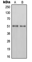 Western blot analysis of PAH expression in HepG2 (A); mouse liver (B) whole cell lysates.