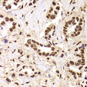 PHAP1 / ANP32A Antibody - Immunohistochemistry of paraffin-embedded Human mammary cancer tissue.