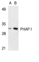 PHAP1 / ANP32A Antibody - Western blot of PHAP I expression in human Raji cell lysate with PHAP I antibody at 2 ug/ml (lane A) and 4 ug/ml (lane B), respectively.