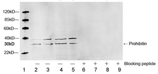 Lane 1: Marker. Lane 2 and 6: Ramos cell lysate. Lane 3 and 7: HepG2 cell lysate. Lane 4 and 8: HeLa cell lysate. Lane 5 and 9: NIH/3T3 cell lysate. Western blot of cell lysates using 1 ug/ml Rabbit Anti-Prohibitin Polyclonal Antibody, without or with immunizing (blocking) peptide. The signal was developed with IRDye 800 Conjugated Goat Anti-Rabbit IgG. Predicted band size: 30KD. Observed band size: 30KD. Additional band size: 38KD.