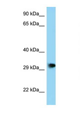 PHF23 Antibody - PHF23 antibody Western blot of Mouse Brain lysate. Antibody concentration 1 ug/ml.  This image was taken for the unconjugated form of this product. Other forms have not been tested.
