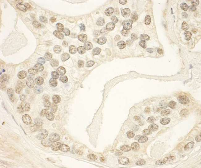 PHF23 Antibody - Detection of Human PHF23 by Immunohistochemistry. Sample: FFPE section of human prostate carcinoma. Antibody: Affinity purified rabbit anti-PHF23 used at a dilution of 1:1000 (1 ug/ml). Detection: DAB.