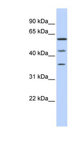 PHF23 Antibody - PHF23 antibody Western blot of MCF7 cell lysate. This image was taken for the unconjugated form of this product. Other forms have not been tested.