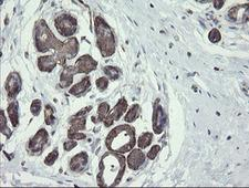 PHF7 Antibody - IHC of paraffin-embedded Human breast tissue using anti-PHF7 mouse monoclonal antibody. (Heat-induced epitope retrieval by 10mM citric buffer, pH6.0, 120°C for 3min).