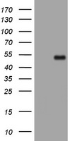 PHF7 Antibody - HEK293T cells were transfected with the pCMV6-ENTRY control (Left lane) or pCMV6-ENTRY PHF7 (Right lane) cDNA for 48 hrs and lysed. Equivalent amounts of cell lysates (5 ug per lane) were separated by SDS-PAGE and immunoblotted with anti-PHF7.