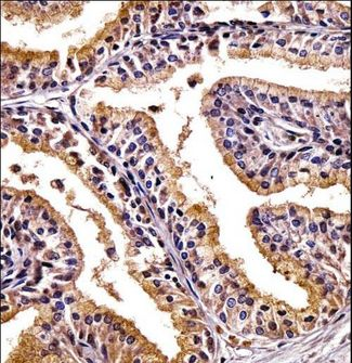 PHLDA2 / TSSC3 Antibody - PHLDA2 Antibody immunohistochemistry of formalin-fixed and paraffin-embedded human prostate tissue followed by peroxidase-conjugated secondary antibody and DAB staining.