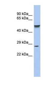 PHOX2A antibody LS-C109639 Western blot of Fetal Stomach lysate.  This image was taken for the unconjugated form of this product. Other forms have not been tested.
