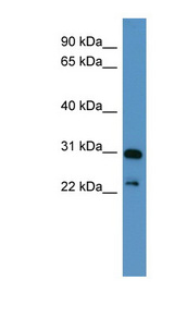 PHOX2A antibody Western blot of MCF7 cell lysate. This image was taken for the unconjugated form of this product. Other forms have not been tested.