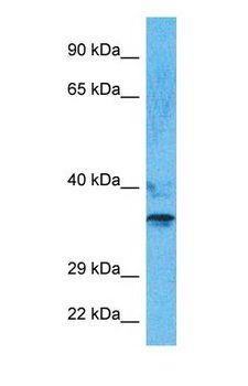 PHOX2B Antibody - Western blot of PHX2B Antibody with human 721_B Whole Cell lysate.  This image was taken for the unconjugated form of this product. Other forms have not been tested.