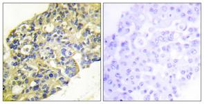 Immunohistochemistry analysis of paraffin-embedded human breast carcinoma tissue, using PI3-kinase p85-alpha/gamma (Ab-467/199) Antibody. The picture on the right is treated with the synthesized peptide.