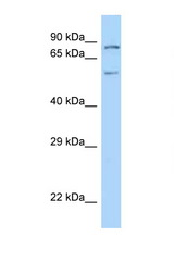 PIAS2 antibody Western blot of Mouse Heart lysate. Antibody concentration 1 ug/ml.  This image was taken for the unconjugated form of this product. Other forms have not been tested.