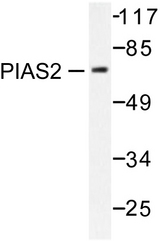 Western blot of PIAS2 (G24) pAb in extracts from COS7 cells.