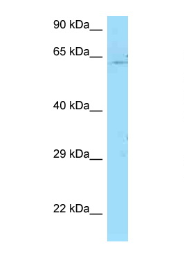 PICALM antibody LS-C146567 Western blot of Jurkat Cell lysate. Antibody concentration 1 ug/ml.  This image was taken for the unconjugated form of this product. Other forms have not been tested.