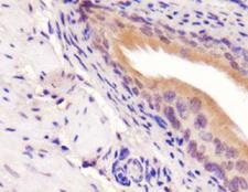 PICK1 Antibody - PICK1 Antibody - IHC of PICK1 on mouse bladder.  This image was taken for the unconjugated form of this product. Other forms have not been tested.