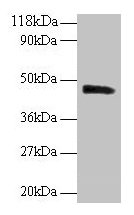 Western blot All lanes: PICK1 antibody at 2µg/ml + Mouse brain tissue Secondary Goat polyclonal to rabbit IgG at 1/10000 dilution Predicted band size: 47, 40 kDa Observed band size: 47 kDa