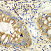 PICK1 Antibody - Immunohistochemistry of paraffin-embedded human colon tissue.