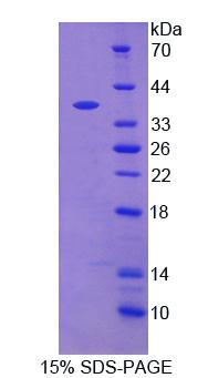 FOLH1 / PSMA Protein - Recombinant  Glutamate Carboxypeptidase II By SDS-PAGE
