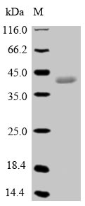 GPX5 Protein - (Tris-Glycine gel) Discontinuous SDS-PAGE (reduced) with 5% enrichment gel and 15% separation gel.