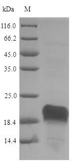 HSP90AA1 / Hsp90 Alpha A1 Protein - (Tris-Glycine gel) Discontinuous SDS-PAGE (reduced) with 5% enrichment gel and 15% separation gel.