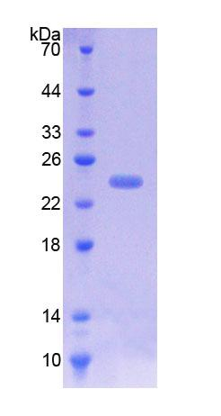 ICAM-1 / CD54 Protein - Recombinant  Intercellular Adhesion Molecule 1 By SDS-PAGE