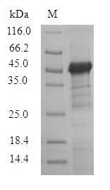 TCN1 Protein - (Tris-Glycine gel) Discontinuous SDS-PAGE (reduced) with 5% enrichment gel and 15% separation gel.