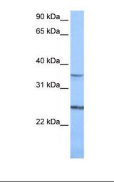 PIGF Antibody - Jurkat cell lysate. Antibody concentration: 1.0 ug/ml. Gel concentration: 12%.  This image was taken for the unconjugated form of this product. Other forms have not been tested.