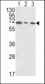PIGR Antibody - Western blot of PIGR Antibody in HepG2(lane 1),K562(lane 2),HL-60(lane 3) cell line lysates (35 ug/lane). PIGR (arrow) was detected using the purified antibody.