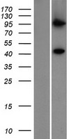PIGV Protein - Western validation with an anti-DDK antibody * L: Control HEK293 lysate R: Over-expression lysate