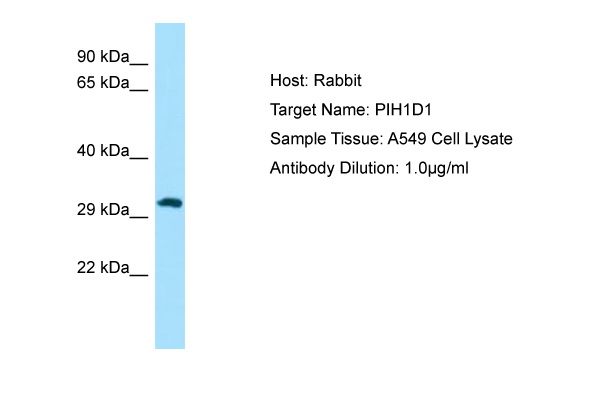 PIH1D1 Antibody -  This image was taken for the unconjugated form of this product. Other forms have not been tested.