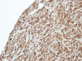 IHC of paraffin-embedded SAS xenograft using PIK3R3 antibody at 1:500 dilution.