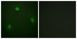 Immunofluorescence of NIH-3T3 cells, using Pin1 (Ab-1619) Antibody. The picture on the right is treated with the synthesized peptide.
