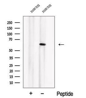 PIP5K1B Antibody - Western blot analysis of extracts of mouse testis tissue using PIP5K1B antibody. The lane on the left was treated with blocking peptide.