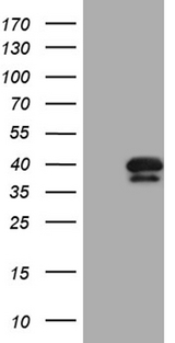PITPNB Antibody - HEK293T cells were transfected with the pCMV6-ENTRY control. (Left lane) or pCMV6-ENTRY PITPNB. (Right lane) cDNA for 48 hrs and lysed. Equivalent amounts of cell lysates. (5 ug per lane) were separated by SDS-PAGE and immunoblotted with anti-PITPNB. (1:2000)