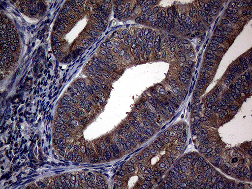 PITPNB Antibody - Immunohistochemical staining of paraffin-embedded Adenocarcinoma of Human endometrium tissue using anti-PITPNB mouse monoclonal antibody. (Heat-induced epitope retrieval by 1mM EDTA in 10mM Tris buffer. (pH8.5) at 120°C for 3 min. (1:2000)