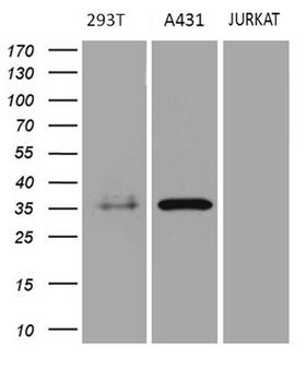 PITPNB Antibody - Western blot analysis of extracts. (35ug) from 3 different cell lines by using anti-PITPNB monoclonal antibody. (A431: human; 293T: human; Jurkat: human). (1:500)