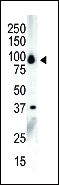 Western blot of anti-PKC nu C-term antibody in NCI-H460 cell lysate. PKC nu (arrow) was detected using purified antibody. Secondary HRP-anti-rabbit was used for signal visualization with chemiluminescence.