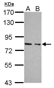 Sample (30 ug of whole cell lysate). A: JC, B: BCL-1. 7.5% SDS PAGE. PKG / PRKG1 antibody diluted at 1:10000.