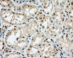 IHC of paraffin-embedded Kidney tissue using anti-PRKG1 mouse monoclonal antibody. (Dilution 1:50).