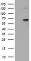 HEK293T cells were transfected with the pCMV6-ENTRY control (Left lane) or pCMV6-ENTRY PKLR (Right lane) cDNA for 48 hrs and lysed. Equivalent amounts of cell lysates (5 ug per lane) were separated by SDS-PAGE and immunoblotted with anti-PKLR.