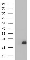 PLA2G16 / HRASLS3 Antibody - HEK293T cells were transfected with the pCMV6-ENTRY control (Left lane) or pCMV6-ENTRY PLA2G16 (Right lane) cDNA for 48 hrs and lysed. Equivalent amounts of cell lysates (5 ug per lane) were separated by SDS-PAGE and immunoblotted with anti-PLA2G16.
